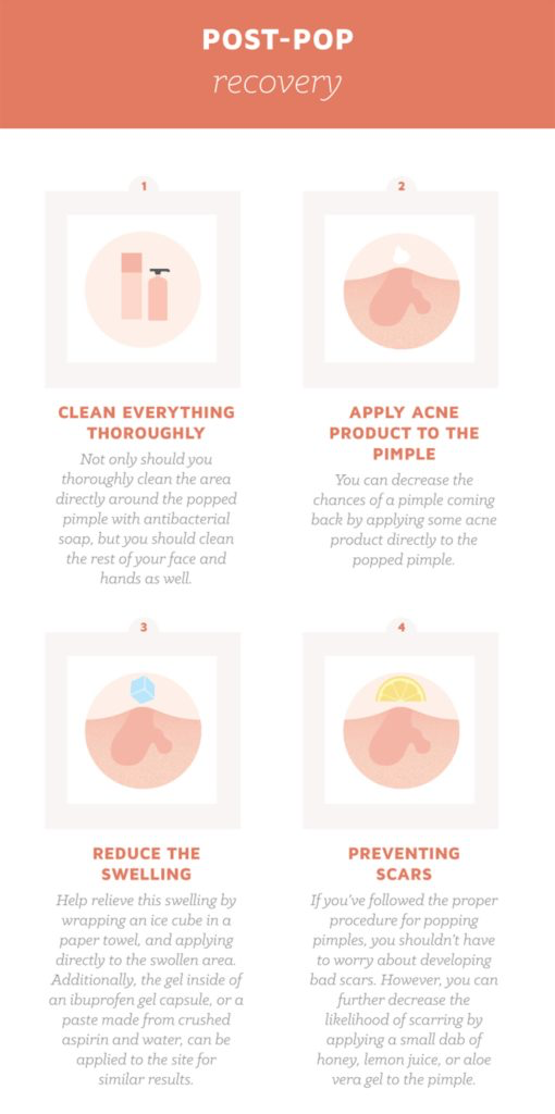 Pimple Popping 101